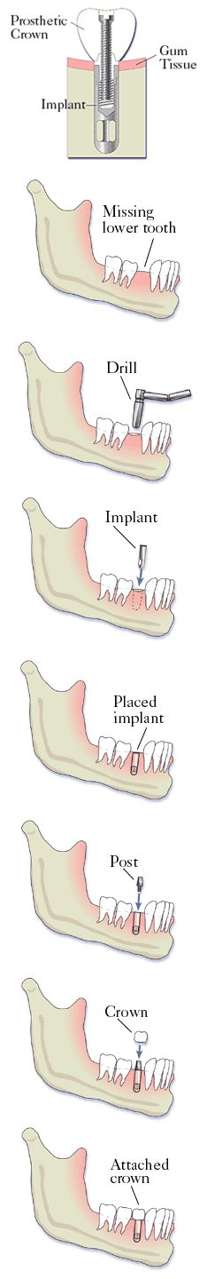 Dental Implant Procedure Description Tulsa Oklahoma OK