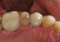 Final Restored Implant