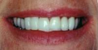 Cosmetic Implantology After Picture