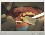 Sinus Cavity Lift Bone Grafting